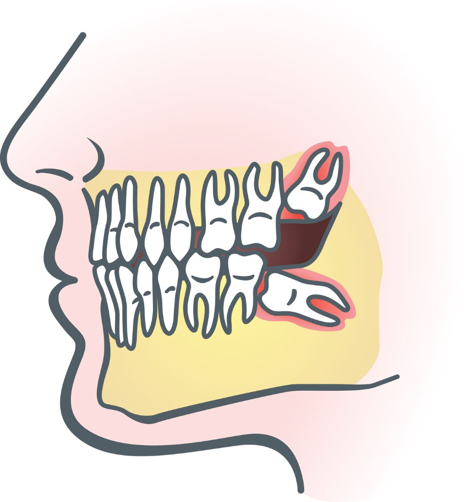 http://onlywisdomteeth.com/wisdom-tooth-pain-causes-and-cures/
