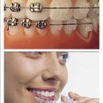 all-braces